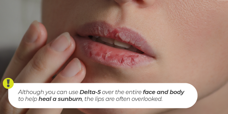 Although you can use Delta-5 over the entire face and body to help heal a sunburn, the lips are often overlooked.