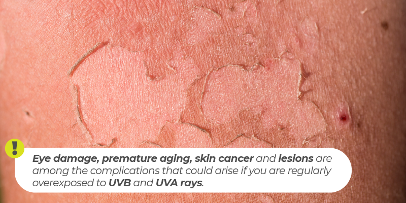 Eye damage, premature aging, skin cancer and lesions are among the complications that could arise if you are regularly overexposed to UVB and UVA rays.