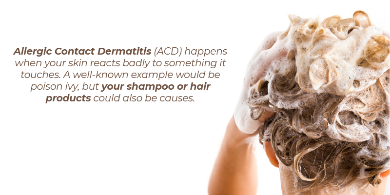 Allergic Contact Dermatitis (ACD) happens when your skin reacts badly to something it touches. A well-known example would be poison ivy, but your shampoo or hair products could also be causes.