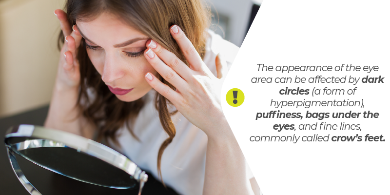 The appearance of the eye area can be affected by dark circles (a form of hyperpigmentation), puffiness, bags under the eyes, and fine lines, commonly called crow's feet.