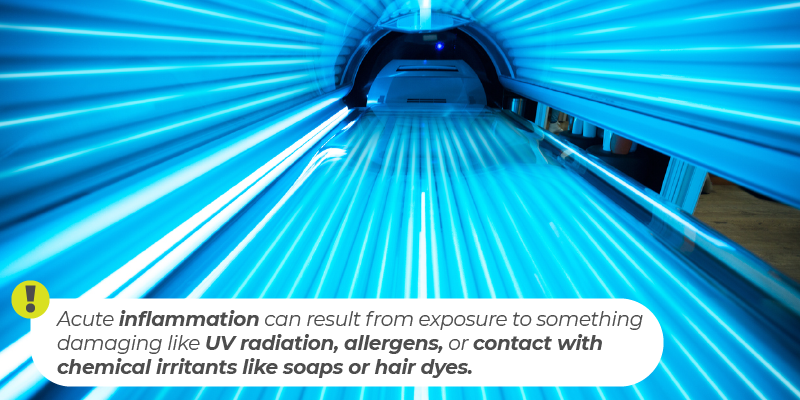 Acute inflammation can result from exposure to something damaging like UV radiation, allergens, or contact with chemical irritants like soaps or hair dyes.