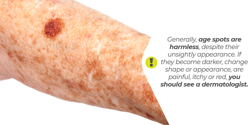 Generally, age spots are harmless, despite their unsightly appearance. If they become darker, change shape or appearance, are painful, itchy or red, you should see a dermatologist.