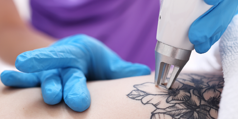 Tattoo Removal The Easy Way