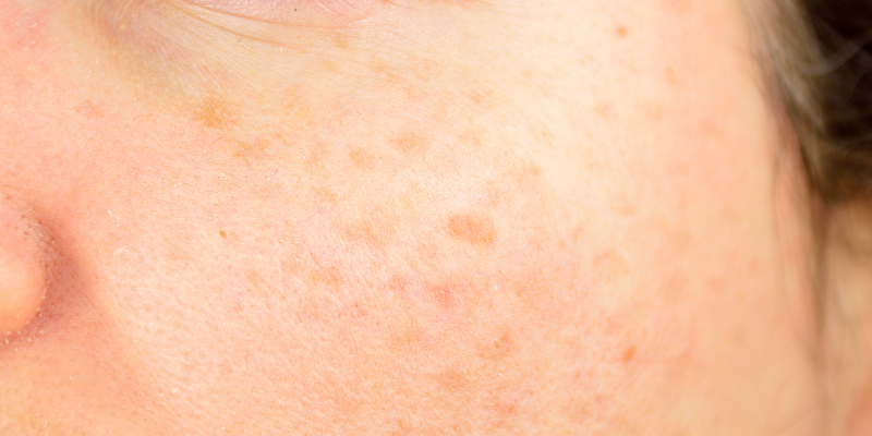What Are Age Spots And What Can I Do About Them-