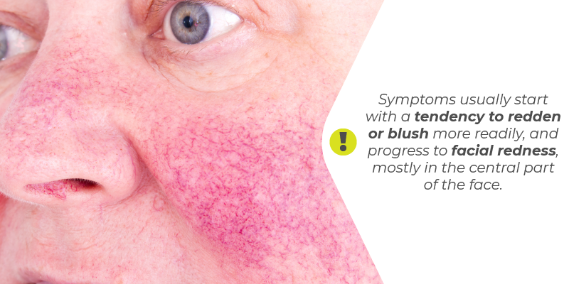 Symptoms usually start with a tendency to redden or blush more readily, and progress to facial redness, mostly in the central part of the face.