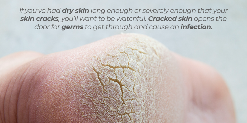 If you've had dry skin long enough or severely enough that your skin cracks, you'll want to be watchful. Cracked skin opens the door for germs to get through and cause an infection.