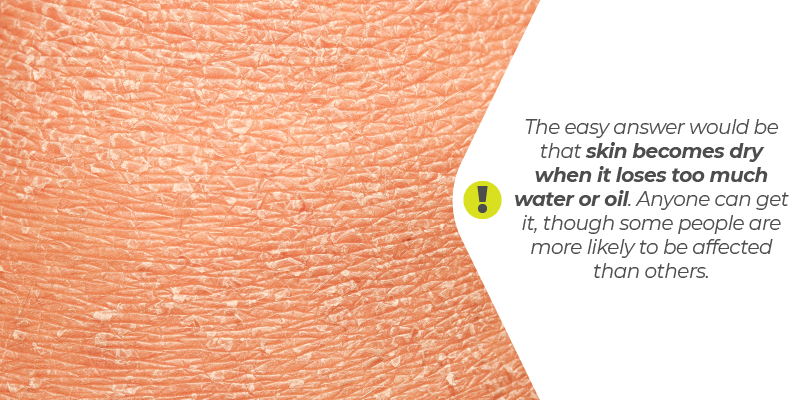 The easy answer would be that skin becomes dry when it loses too much water or oil. Anyone can get it, though some people are more likely to be affected than others.