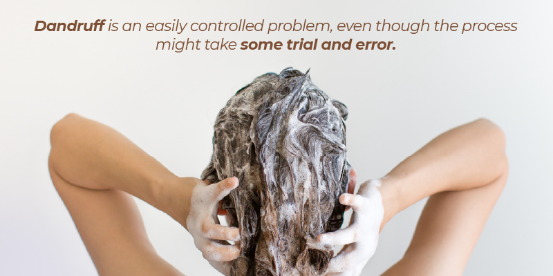 Dandruff is an easily controlled problem, even though the process might take some trial and error.