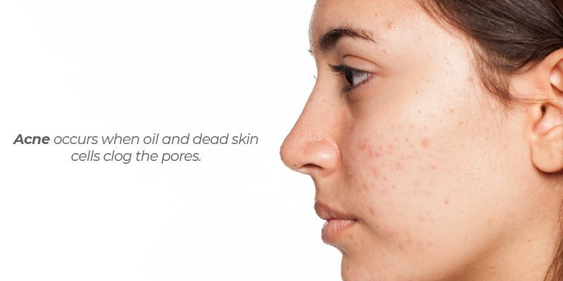 Acne occurs when oil and dead skin cells clog the pores.