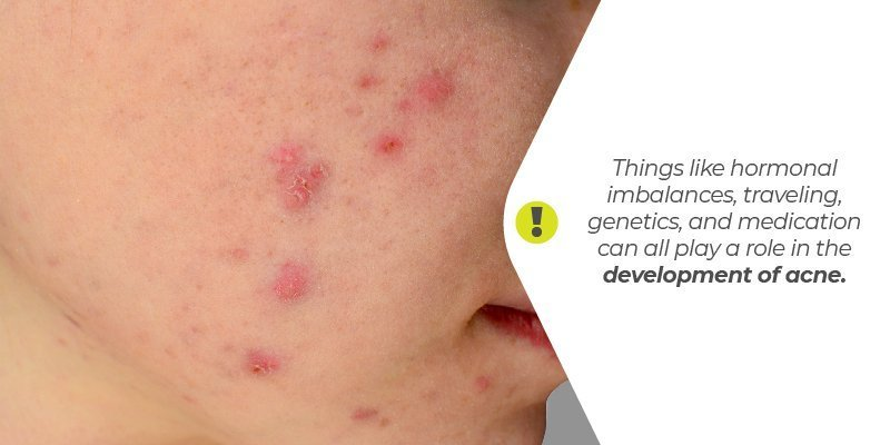 Things like hormonal imbalances, traveling, genetics, and medication can all play a role in the development of acne.