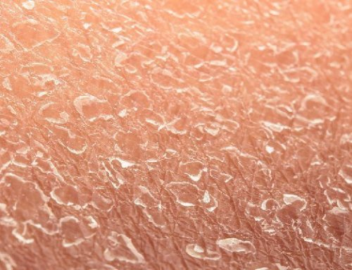 What Could Be Causing Your Dry Skin